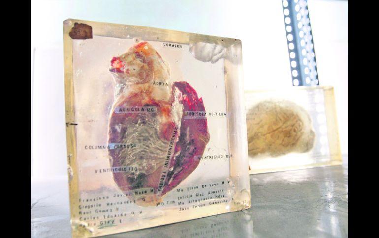 La manipulación de cadáveres es historia   El Informador :: Noticias ...