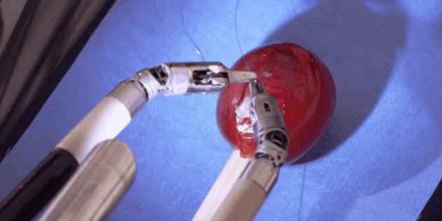 Un éxito, la primera cirugía robótica de tórax en hospital de México