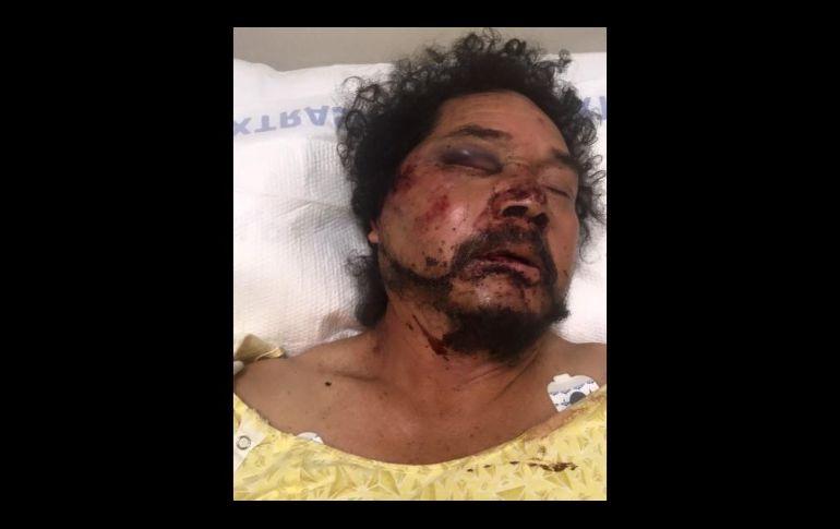 Goplpean y asaltan a mexicano en Los Ángeles y recibe ayuda